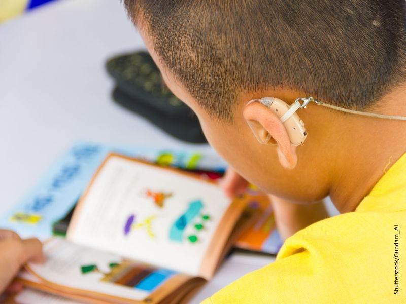 niño con implante auditivo
